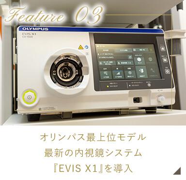 オリンパス最上位モデル最新の内視鏡システム『EVIS X1』を導入